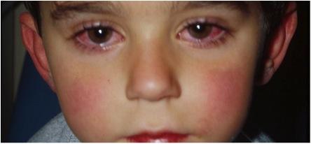 conjuntivitis 1